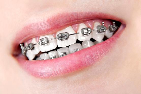 Ortodoncia convencional o brackets