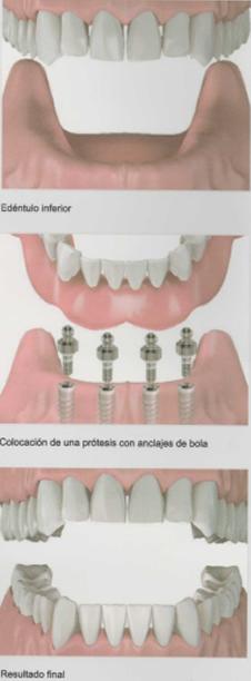 implantes-3