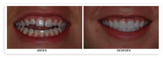 Carillas porcelana dental