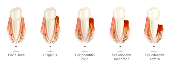 encias periodoncia